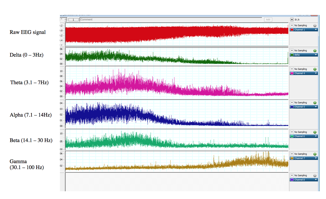 features extraction techniqes of eeg signal A comparison of feature extraction methods  extraction techniques on the publicly available tuh eeg corpus using a  signal processing.